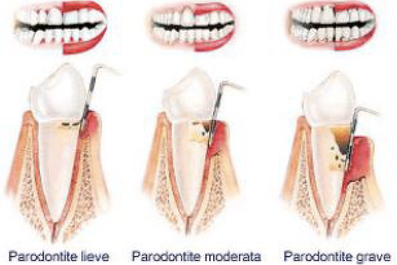 Parodontite piorrea